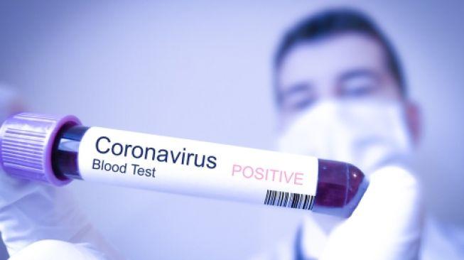 Cara Agar Tehindar dari Virus Corona