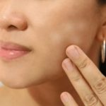 4 Cara Menghilangkan Panu di Wajah dengan Cepat dan Mudah