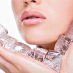 10 Cara Menghilangkan Jerawat dan Bekasnya dengan Es Batu