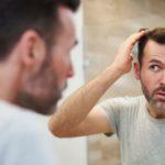 Masalah yang Sering Dialami Oleh Rambut Pria dan Solusinya