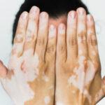 Muncul Bercak Putih di Kulit, Yuk Mengenal Gejala Vitiligo Pada Kulit dan Penyebabnya