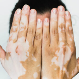 gejala vitigo pada kulit